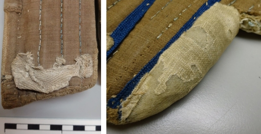 CST.2.976- After treatment showing nylon netting encasing damaged tape and underarm padded area